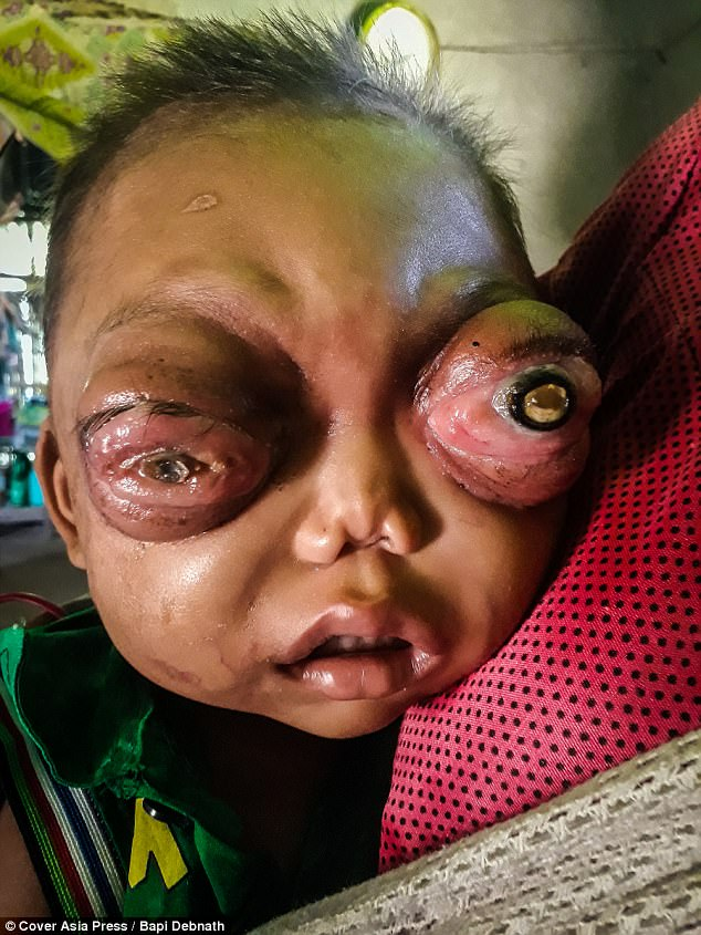 Heartbreaking Pictures Of Two Year Old Boy With Painful