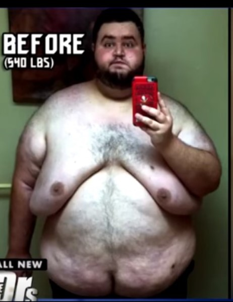 540-Pound Man Looks Completely Different After 300-Pound Weight Loss